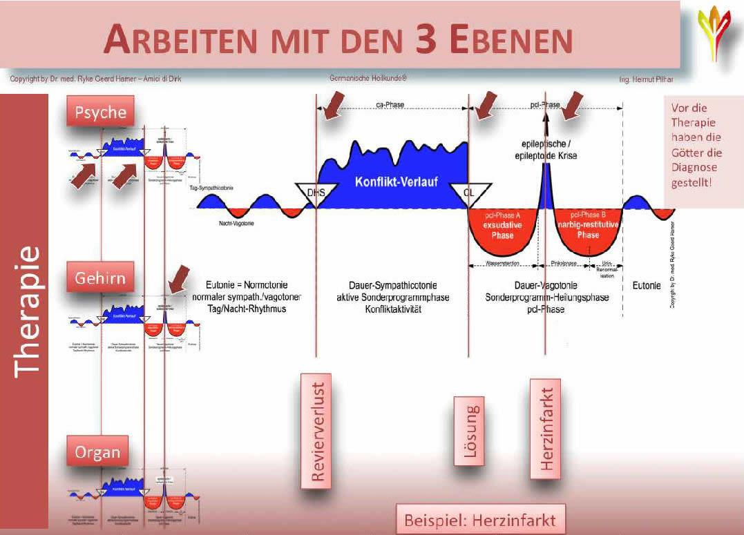 3 Ebenen_Therapiemodell der Germanischen Heilkunde
