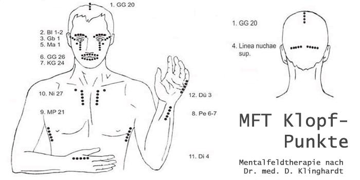 MFT-Klopfpunkte nach Dr. med. Dietrich Klinghardt
